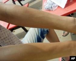 一名男工人展示接觸到化學用品的手臂確﹐有過敏皮膚反應