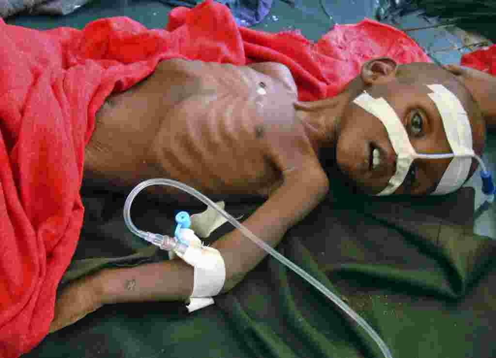 La escasez de comida se ha incrementado por las sequías que azotan esta área. Abdirisak Mursal, de tres años sufre de malnutrición.