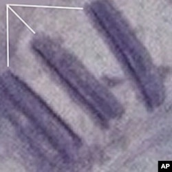Satellite Image of alleged mass graves in Kadugli in Sudan's South Kordofan State, July 2011