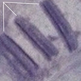 Satellite Image of alleged mass graves in Kadugli in Sudan's South Kordofan State, July 2011