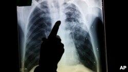 Los tumores pulmonares son detectados con frecuencia por medio de Rayos X o tomografías computarizadas.