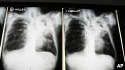 Raio-X de doente com Tuberculose