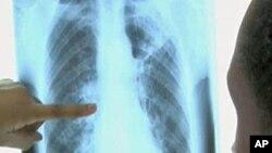Компјутерската томографија подобра од рентгенот?