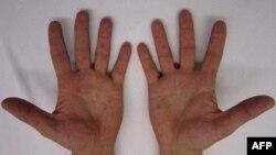 Biểu hiện bệnh tay chân miệng trên lòng bàn tay