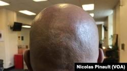 Un homme à la tête chauve, Washington, USA, 6 juin 2017. (VOA/Nicolas Pinault)