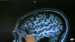 การที่สมองคนเราหดตัวลงเมื่ออายุมากขึ้นนั้น เป็นลักษณะเฉพาะของมนุษย์ในด้านวิวัฒนาการ