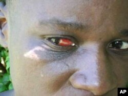 A farm worker in Zimbabwe with injuries to her face and eyes after she was beaten, allegedly by Zanu-PF supporters