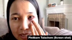 Mantakarn Seenin, A Thai woman shows her wounds on her face cause by brutally attacked while riding the BART train in San Francisco, CA.