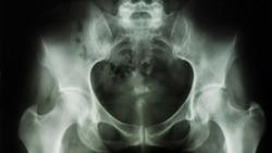 Osteoporosis Increases Danger of Broken Bones