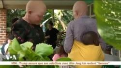 Le combat des femmes albinos en Ouganda