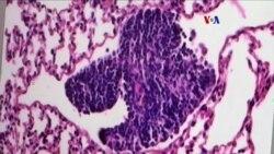 Importantes avances en la lucha contra el cáncer
