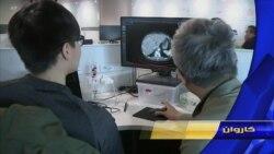 هوش مصنوعی زمان تشخیص سرطان را کوتاه کرده است