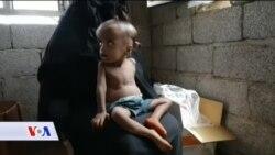 JEMEN: Neuhranjeno je više od 1.8 miliona djece mlađe od pet godina
