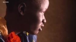 Watoto waeleza madhila ya vita ya Sudan Kusini