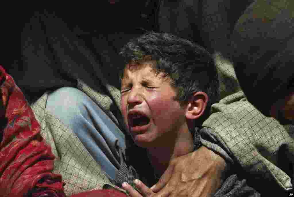A Kashmiri boy cries after a traditional health worker uses leeches to suck blood as part of treatment, on the outskirts of Srinagar, India.