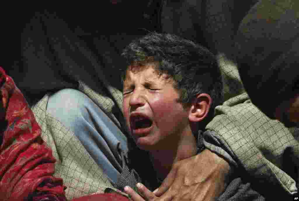 Bé trai Kashmir khóc sau khi một thầy thuốc dân tộc dùng đỉa hút máu của em để chữa bệnh, ở bên ngoài Srinagar, Ấn Độ.