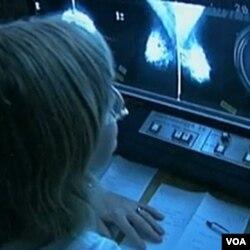 Seorang peneliti AS tengah mengamati sel-sel pada kanker payudara.