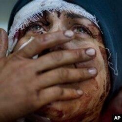 Zo'ravonliklardan omon qolgan suriyalik. Hims va Idlib shaharlari - hukumat kuchlari va muxolifat orasidagi jang maydoni.