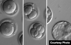 This sequence of images shows the development of embryos after co-injection of a gene-correcting enzyme and sperm