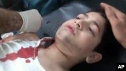 시리아 알레포에서 정부군의 총격으로 부상을입고 병원으로 후송돼 응급치료를 받고있는 어린이