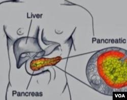 pancreatic cancer voa