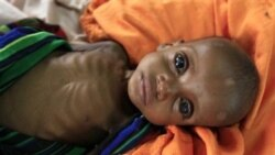 سوپرمدل آفریقایی بی اعتنایی جامعه جهانی نسبت به قحطی زدگان سومالی رامحکوم کرد