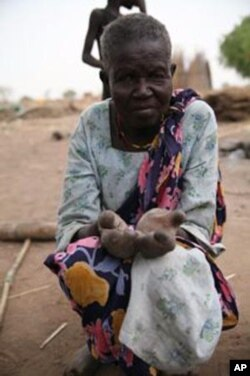 FILE - A woman, hands disfigured by leprosy and with no means of support, begs for food or any other offerings that can help her survive at a leper colony outside Juba, South Sudan's capital.