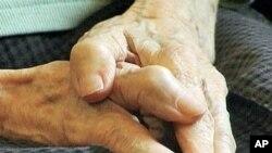 四肢僵硬是帕金森氏病的一个症状