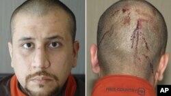 Fotos de George Zimmerman, el vigilante que disparó a Trayvon Martin, que muestran sus heridas en la cabeza, como parte de las más de 200 páginas divulgados el jueves.