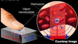 A newly-developed device detects malaria infection using laser pulses.