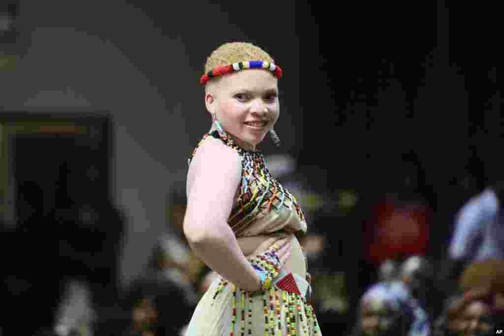 یک شرکت کننده در مراسم رژه افراد مبتلا به «زالی» در زیمباوه. زالییاآلبینیسمنوعیبیماری ژنتیکی است که رنگ پوست فرد سفید میشود و بیشتر در پسرها شایع است.