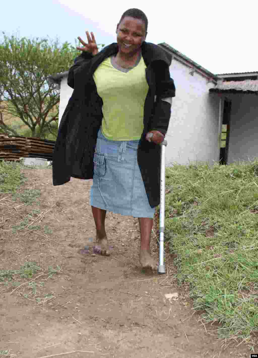 Lumka must walk with the aid of a crutch, but she often falls and hurts herself (VOA/ D. Taylor)