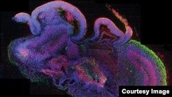 Matične ćelije mozga