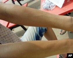 一名男性工人展示手臂过敏皮肤和抓痕