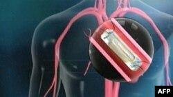 Yeni Araştırmalar Kalp Hastalarına Umut Işığı Oldu