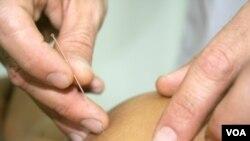 Meskipun bermanfaat sebagai salah satu pengobatan alternatif, akupuntur mempunyai risiko bagi anak-anak bila tidak dilakukan oleh ahlinya (foto: ilustrasi).