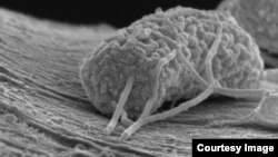 A microbe is seen under a microsope. (Xing Xie, Stanford Engineering)