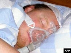 Opstruktivna apneja ozbiljno ugrožava zdravlje