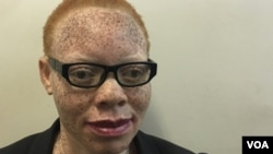Tapiwa Gwen Marange, a 34-year-old albino woman, says more education is needed for Zimbabwe traditional healers to stop promoting myths about albinism. (S. Mhofu/VOA)