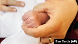 Hình minh họa - Chứng ngón tay bóp cò bẩm sinh thường thấy nhất ở ngón tay cái. Bé không duỗi ngón tay ra được, và ở dưới gốc ngón tay, có thể sờ thấy được một cái hạt nhỏ gọi là hạt Atta (Atta nodule).