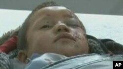 یک کودک زخمی در حادثه ولایت بلخ