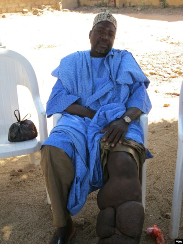 Hamisu Isa has suffered from lymphatic filariasis, or elephantiasis, for more than two decades. (VOA/P. Graitcer)