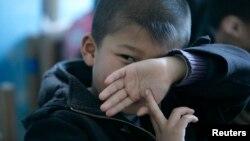 Sự gia tăng một số chứng rối loạn não bộ trẻ em, trong đó có rối loạn tăng động giảm chú ý ADHD, tính hiếu động thái quá, hiện tượng đọc khó, chứng liệt não, và chứng rối loạn tự kỷ, có thể là kết quả của việc sử dụng quá nhiều các hóa chất độc hại trên khắp thế giới