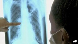 An x-ray of the lungs of a TB patient