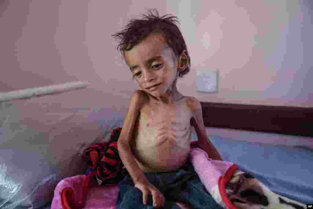 یمن میں خانہ جنگی کے نتیجے میں شدید غذائی قلت کا شکار ایک بچہ اسپتال میں داخل ہے۔ عالمی اداروں کا کہنا ہے کہ یمن کی خانہ جنگی کے نتیجے میں اب تک 80 ہزار سے زائد بچے غذائی قلت کے باعث موت کے منہ میں جا چکے ہیں۔