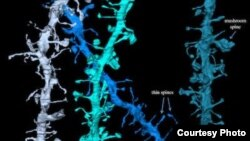 3D images of synapses that shrink during sleep. Credit: Wisconsin Center for Sleep and Consciousness