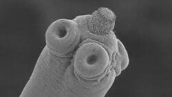 Nhiễm ký sinh trùng từ chó mèo