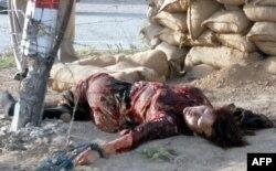 Pakistan'da Polis Doktoruna Suikast