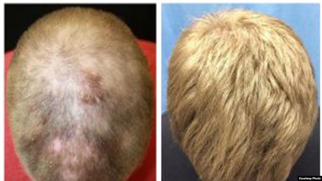 Traitement repousse de cheveux homme