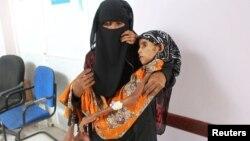 Sang kakak menggendong Fatima di klinik di Aslam.